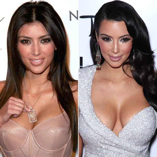 Kim Kardashian Before and After Plastic Surgery  Architecture World
